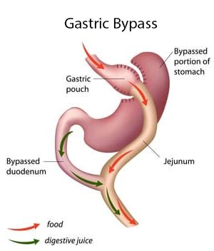 Gastric Bypass Revision Surgery - 6 Options - Bariatric
