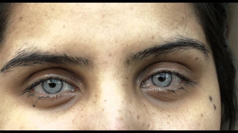Alternative to color contacts using permanent implants