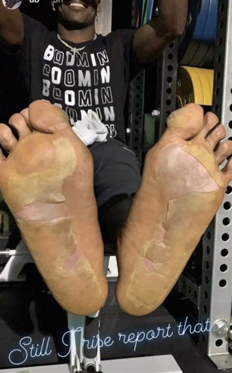 Antonio Brown Shows Off His Blistered Feet After Being