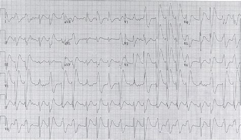 Diphenhydramine Overdose with Intraventricular Conduction