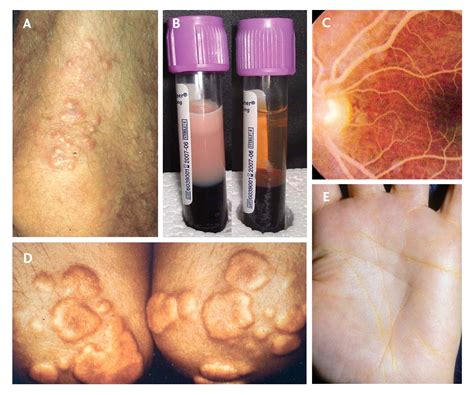 Hypertriglyceridemia: its etiology, effects and treatment