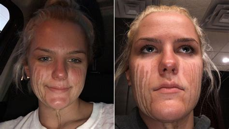 Teen Proves Crying After Spray Tan Leads to Streaks in