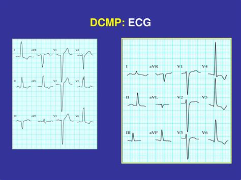 PPT - RESTRİCTİVE CARDİOMYOPATHY (RCMP): PowerPoint