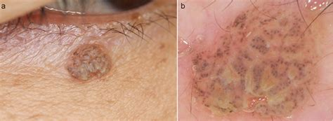 Brown Nodule on the Lower Eyelid: A Quiz | HTML | Acta