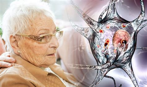 Dementia with Lewy Bodies symptoms: Six signs of the