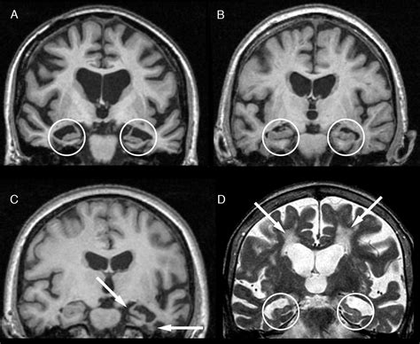 Suspected early dementia | The BMJ