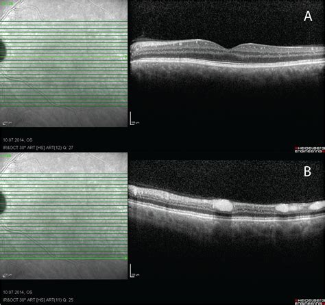 Spectral-Domain Optical Coherence Tomography Findings in
